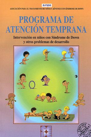 PROGRAMA DE ATENCION TEMPRANA INTERVENCION DOWN