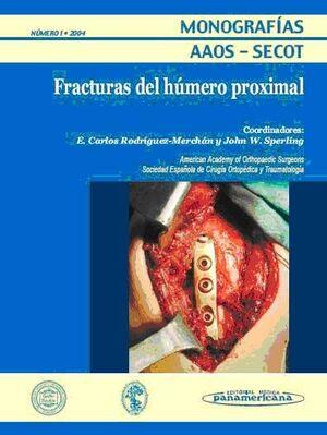 MONOGRAFÍA Nº 1/2004: FRACTURAS DEL HÚMERO PROXIMAL