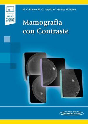 MAMOGRAFÍA CON CONTRASTE (+E-BOOK)